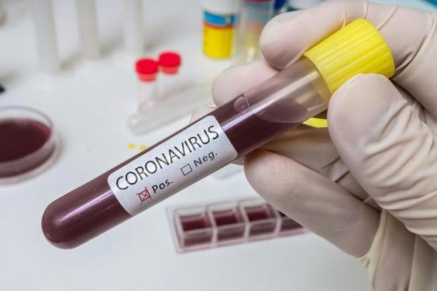 Another 90 people die in hospitals after testing positive for coronavirus