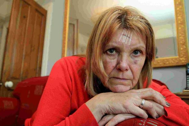 SHOCK: Ann Woolston was badly injured after a cyclist ran her over on the pavement alongside Sterte Road in Poole