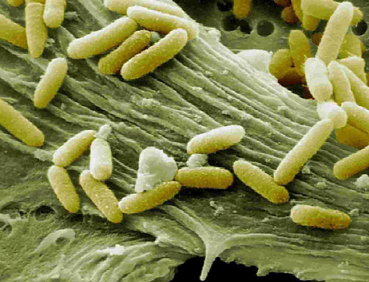 case odwalla e coli outbreak Marler clark sponsors the foodborne illness outbreak database  ecoli o157: h7 was detected in .