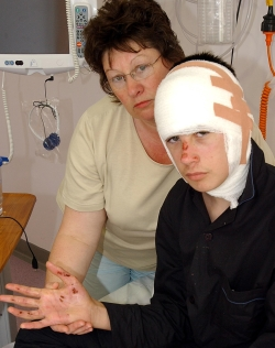 BADLY BURNED: Matthew Moore with his mother Lesley at Salisbury District Hospital