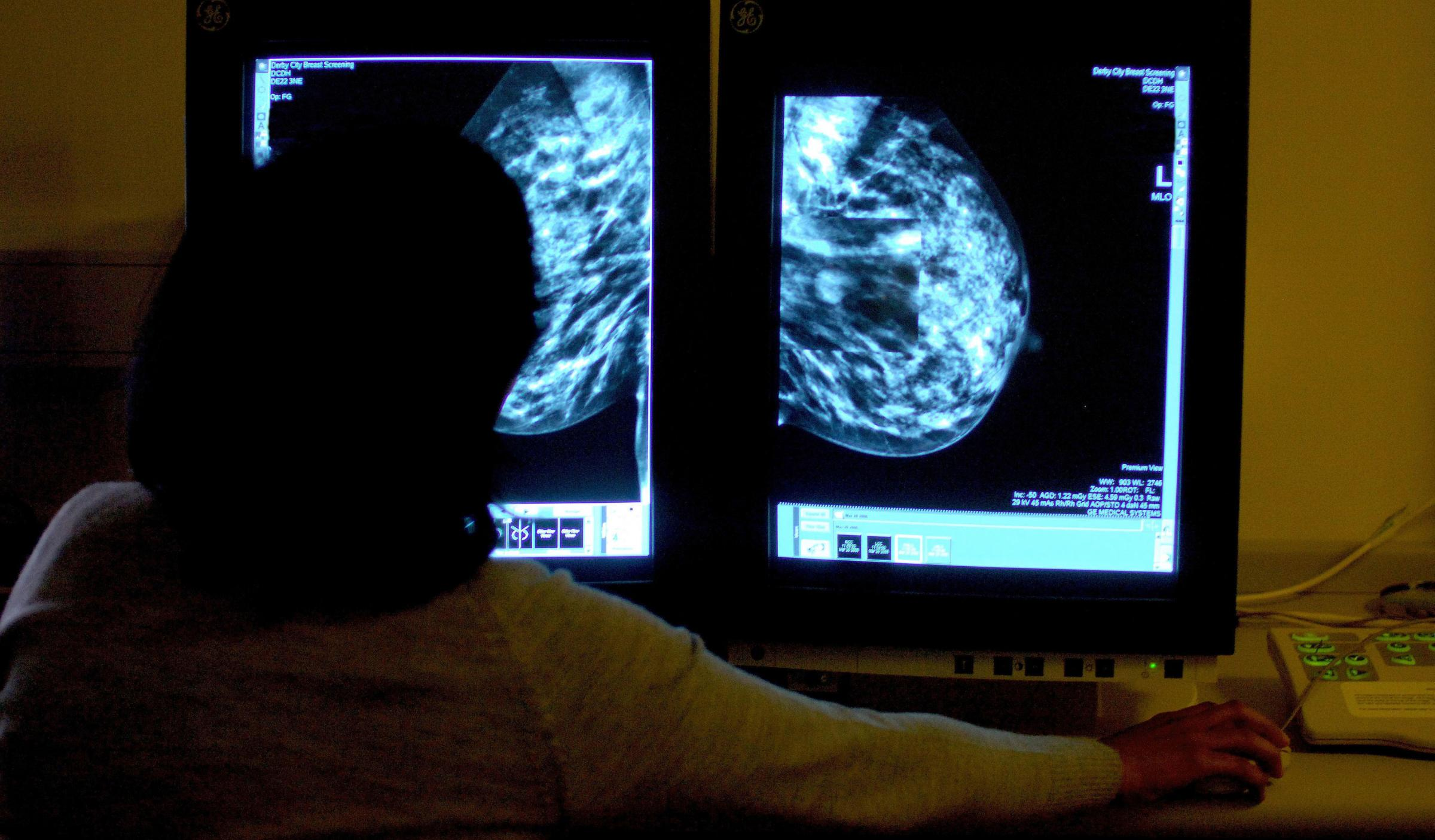 File photo dated 15/06/06 of a consultant studying a mammogram. Hundreds of thousands of women were not invited for routine breast cancer screening due to an administrative error, it has been reported. PRESS ASSOCIATION Photo. Issue date:
