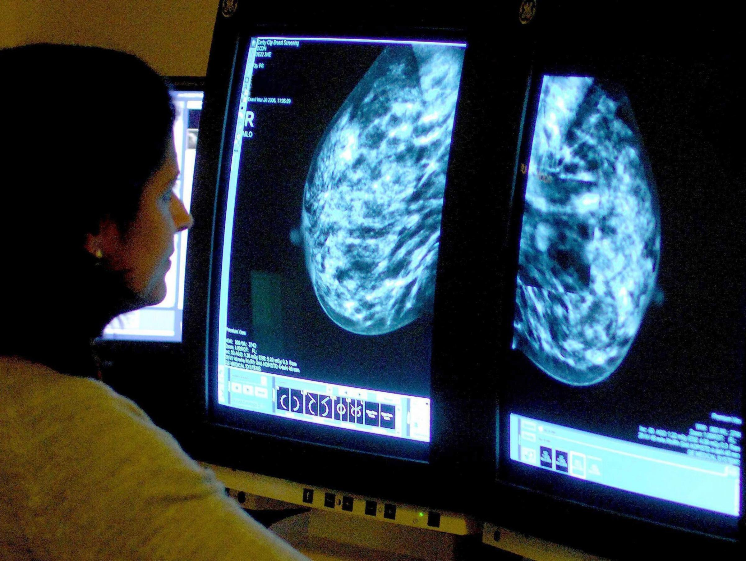 Dorset hospitals fail to provide assurances over national breast cancer screening error
