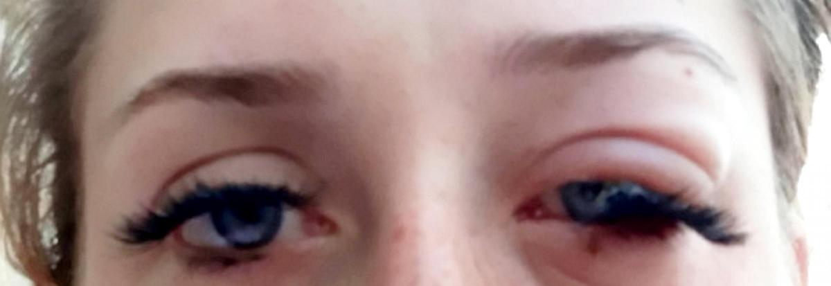 Mum To Be From Thamesmead Blames Eyelash Extensions For Swollen And